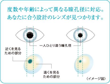 度数や年齢によって異なる瞳孔径に対応